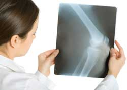 A female    doctor examines an X-ray of bones and the corresponding joint.